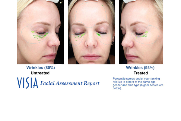 DermaSweep_Before_and_After_FineLines_Visia