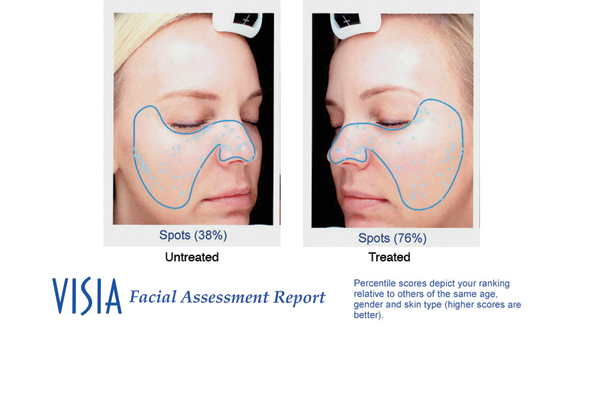DermaSweep_Before_and_After_Pigmentation_visia