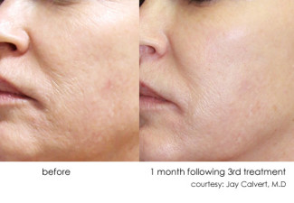 DermaSweep_Before_and_After_Tone+Texture_2