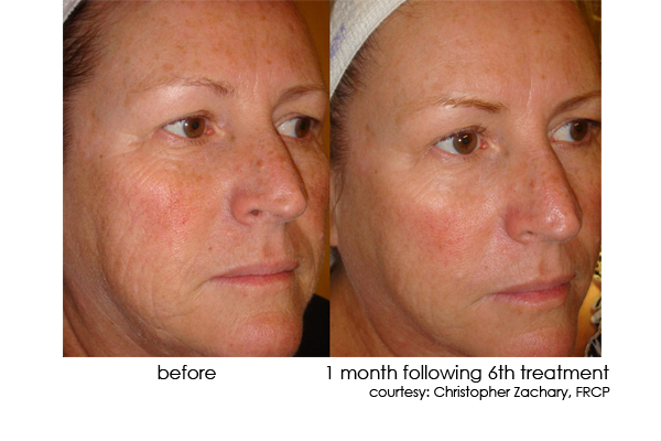 DermaSweep_Before_and_After_Pigmentation_1