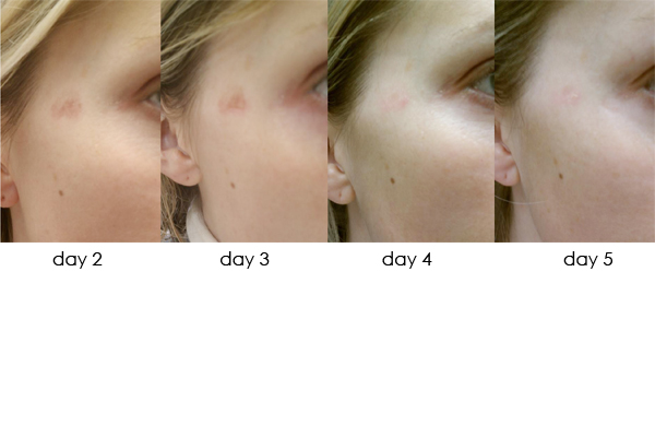 DermaSweep_Before_and_After_Pigmentation_3
