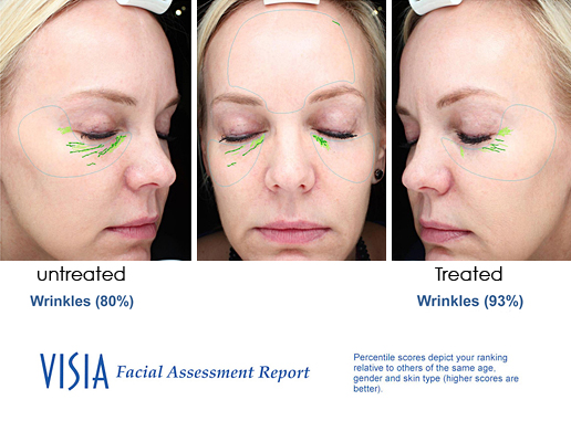 DermaSweep_PremiumFusion_Before_and_After_Eye_Area