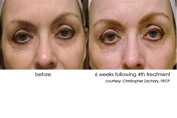 DermaSweep__PremiumFusion_Before_and_After_Eye_Area_1