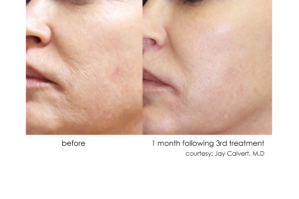 DermaSweep_Before_and_After_Tone+Texture_3